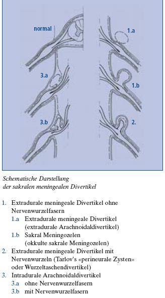 tarlovcyst and arachnoiditis, Skeleton